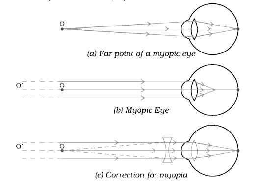 Myopia ray diagram. Torok Maria (torokmaria24) on Pinterest